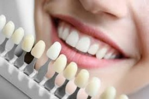 Different types and Benefits of Dental Impants in Ahmedabad