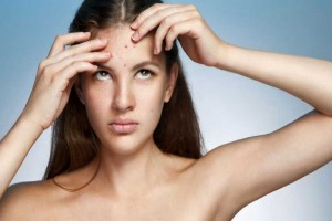 How to Select Best Dermatologist For Acne Cure?